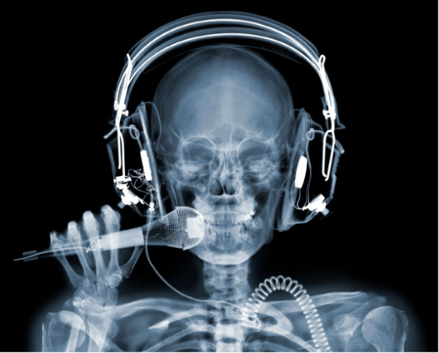 Picture 14 622x500 X Ray Art by Nick Veasey